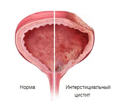 Интерстициальный Цистит И Диета. Интерстициальный цистит: причины, симптомы и диагностика болезни